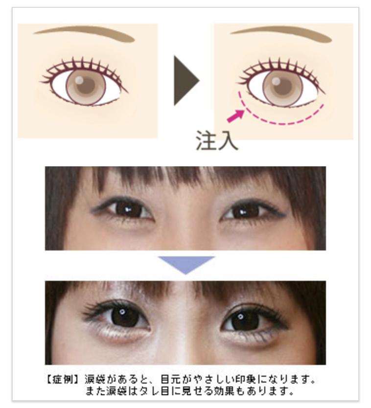 目 の 整形