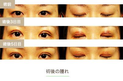 切開 二 傷跡 重 二重まぶた整形:切開法|湯田眼科美容クリニック/RY グループ