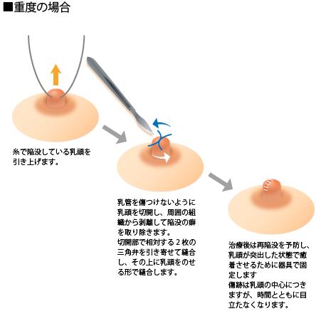 陥没乳頭(陥没乳首)軽度の治療方法 重度の治療方法