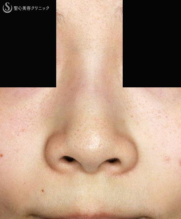 整形 鼻の穴