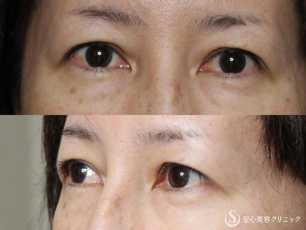 下 っ プラスト 眉 切開 く に くり 眉毛下切開法(眉下切開法、眉下リフト) による瞼のたるみ取りについて