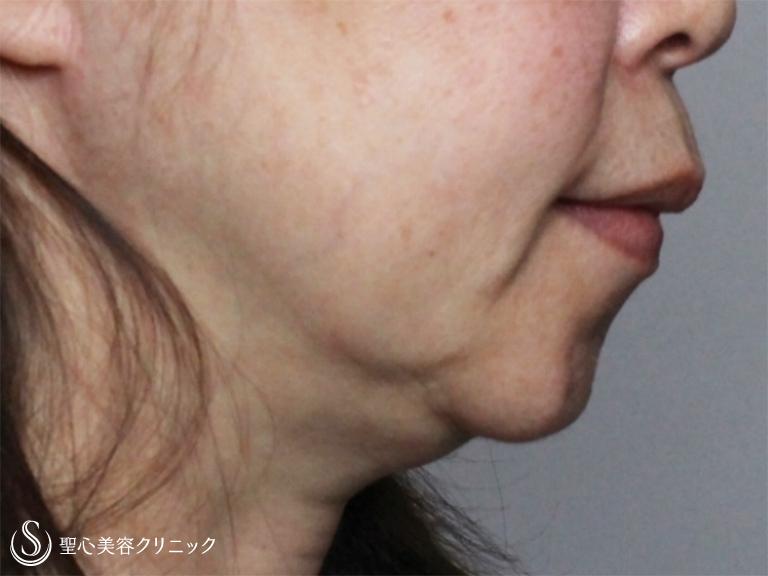 吸引 脂肪 顎 下